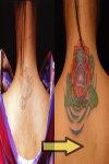 lotus on lotus